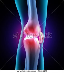 knee joint pain - inflammation and pain in chronic tendonitis