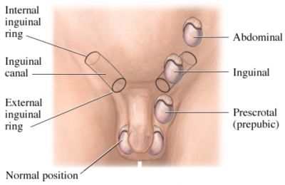 Inguinal Illustration