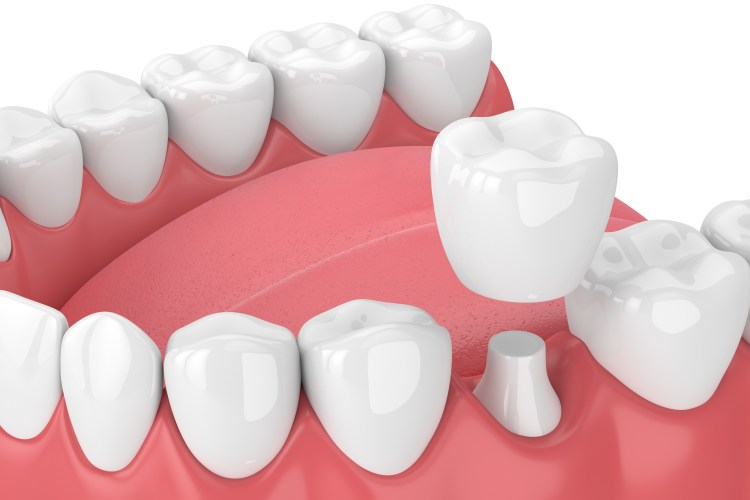 Metal free crowns for strength and beauty.