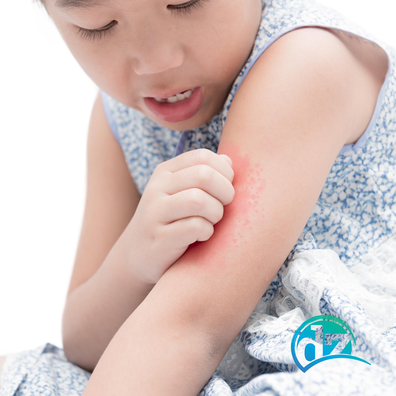 allergien intoleranzen daniel zbinden ernährungsberater hautprobleme