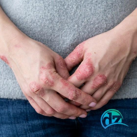 hautprobleme neurodermitis rötungen ernährung essen schuppenflechten