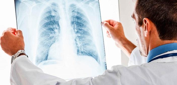 Akciğerlerinize Zarar Verebilecek Bazı Şeyler
