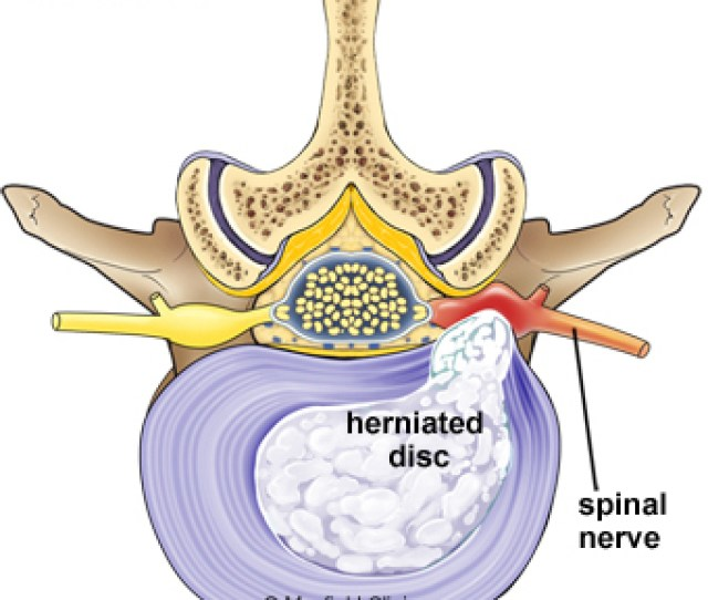 Normal And Herniated Disc The Gel Filled Nucleus Material Escapes Through A Tear In The Disc Annulus And Compresses The Spinal Nerve