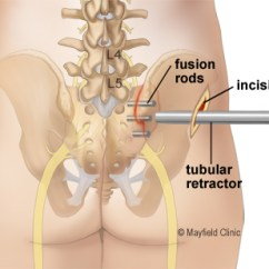 Sacroiliac Joint Diagram Heating System Wiring Y Plan Pain Hip And Buttock Si Fusion