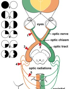 Visual field defects can vary depending where along the pathway  lesion red triangle is located also test mayfield brain  spine rh mayfieldclinic