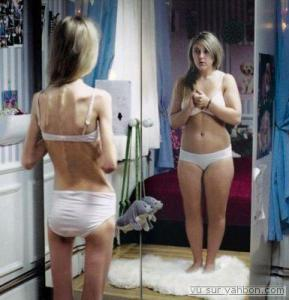 eating disorders disordered eating northern virginia