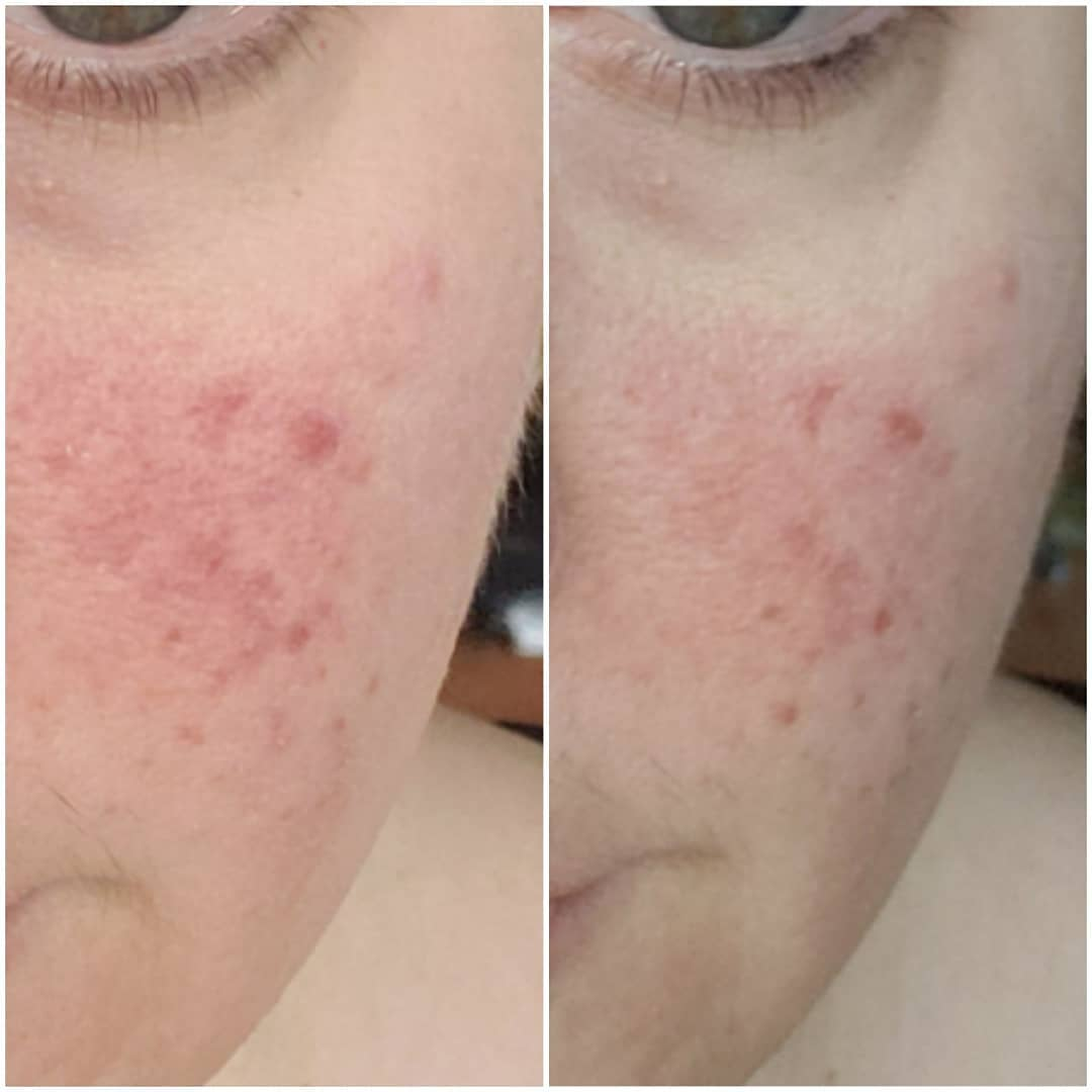 Azelaic Acid For Skin - Beauty Trends