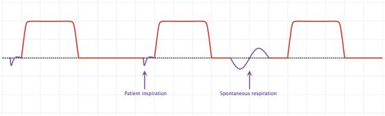 Synchronized Intermittent Mandatory Ventilation (SIMV)