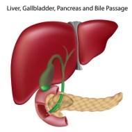 Natürliche Entfernung von Gallensteine