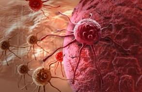 Erfahren Sie wie man Krebs verhindern kann