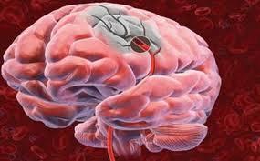 Ischämie (Zell-Leiden): Behandlung  und wie man sie verhindert