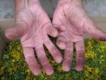 rot gefaerbte Finger vom Sammeln der Johanniskraut Blueten