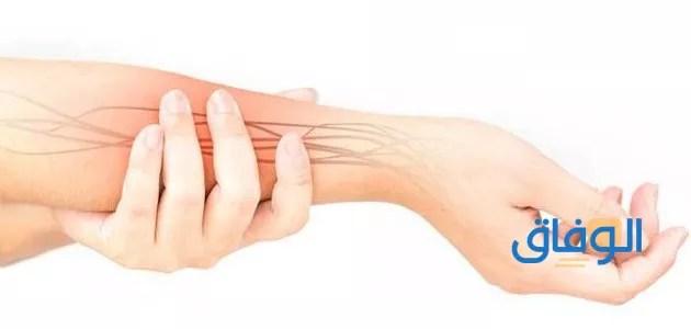 علاج اختناق عصب اليد بدون جراح