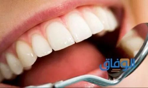 كيف أزيل تسوس الأسنان دون طبيب