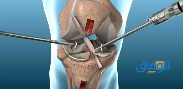 أسباب وأعراض الإصابة بقطع في الرباط الصليبي الأمامي