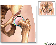 Illustration of the hip joint