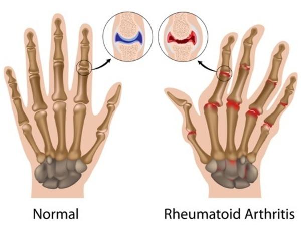 Image result for rheumatoid arthritis site:.gov