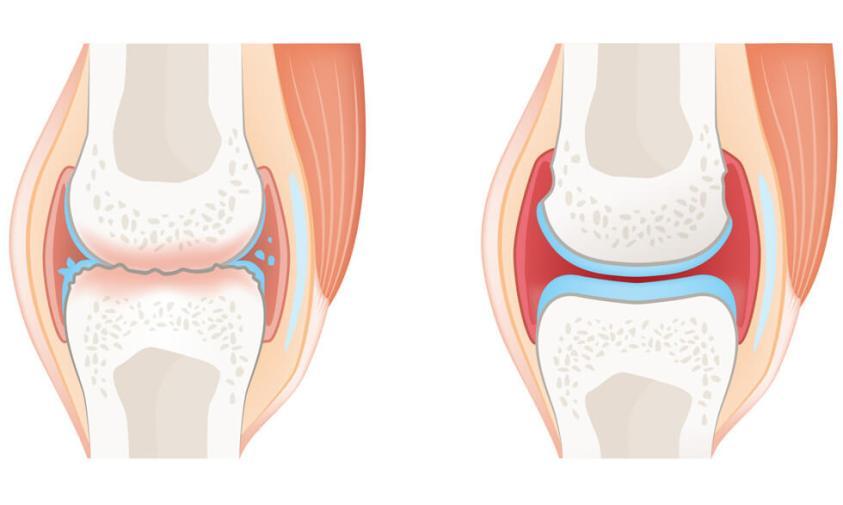 Rheumatoid arthritis or osteoarthritis?