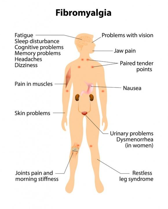 Fibromyalgia Center | Symptoms, Treatments, Pain Relief, Causes