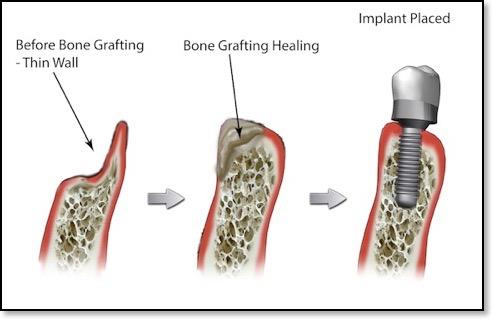 Bone-graft-with-dental-implant-thin-wall