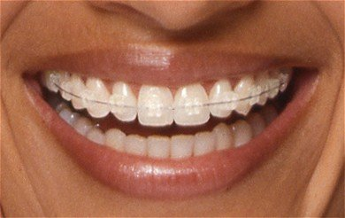 Orthodontics/Braces