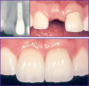 What Are The Possible Consequences of Missing Teeth….. It's not good
