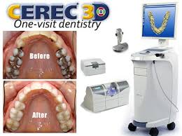 We are your local CEREC dentist for single-visit crowns