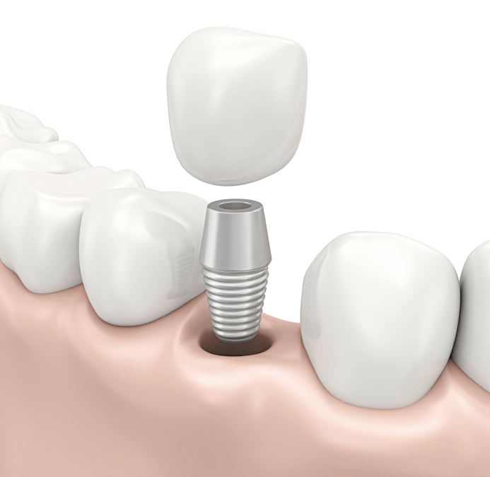 Our West Knoxville Dental office Offering Quality Dental Implants