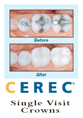 Learn Why CEREC is the King of the Crown