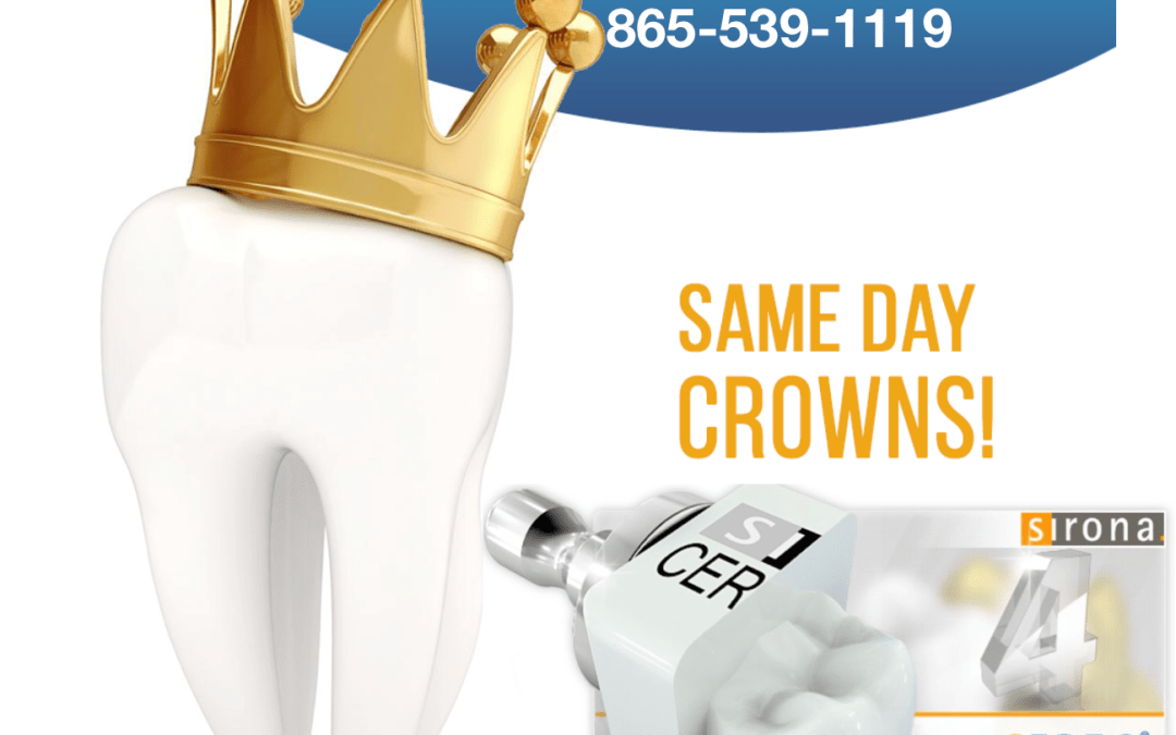 CEREC Allows Dentists to Quickly Restore Damaged Teeth Same Day!