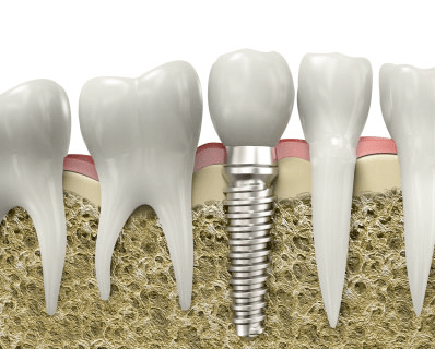 Today Dental implants are changing the way people live