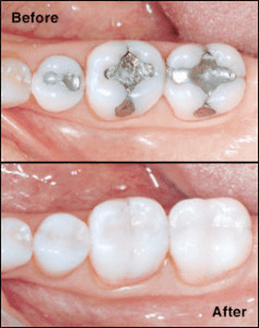 Metal Free Crowns in One Appointment at Dean Cosmetic Dentistry