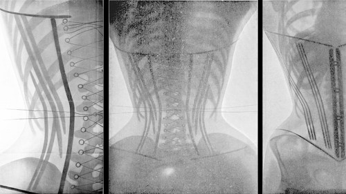 028700b781 Monday News  X-rays of corsets  scientists study the justification for oral  sex  Price fixing trial is over