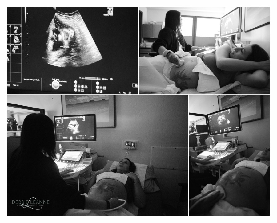Pregnant mom getting an ultrasound of her baby