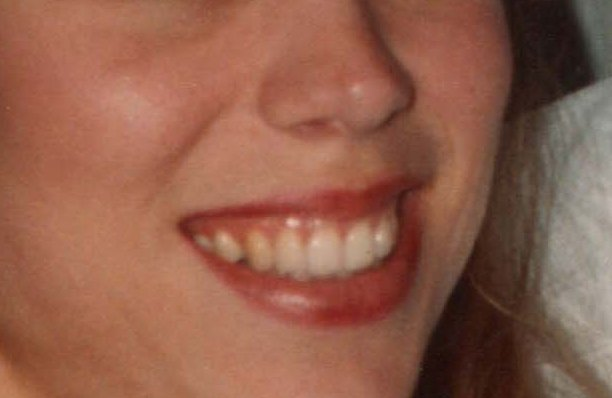"""This is the peson who is supposed to be """"April Rankin"""", but isn't. Her gums show when she smiles, and I think she is my step sister Robin Rich."""