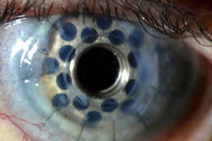 Image of artificial cornea.