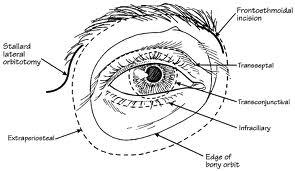 Proptosis, Exophthalmos, Orbital Disease & Orbital Surgery