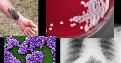 Sverdlovsk Anthrax Bioweapon Leak