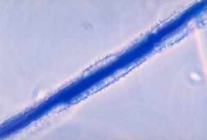 aspergilus flavus