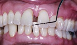 FIGURE 6. Formation of acquired diastema in a patient with severe periodontitis.