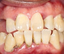 FIGURE 7. Pathologic tooth migration of tooth #9 away from its distal infrabony component.