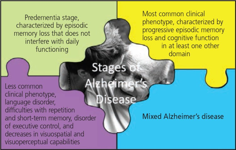 FIGURE 1. Alzheimer's disease stages of progression, clockwise from top left4