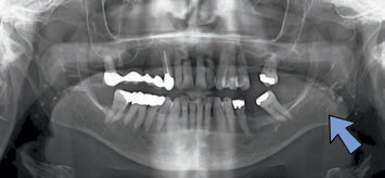 FIGURE 10. Tonsilloliths are scattered across both rami. Note the ghost images on the right side of the panoramic radiograph from the left tonsilloliths and sclerosis at the mesial root tooth #19.