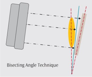 FIGURE 2. Illustration of the bisecting angle technique for taking periapical radiographs in situations in which using the parallel technique is not possible.