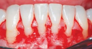 FIGURE 6A. A postoperative view after surgically assisted osteogenic orthodontic treatment.