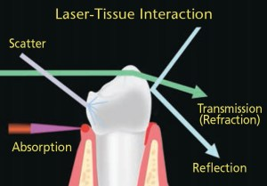 FIGURE 2.. When a laser is directed at and absorbed by living tissue, the target tissue is directly impacted. The laser's light energy, however, can also be reflected, scattered or moved through the tissue without any effects.