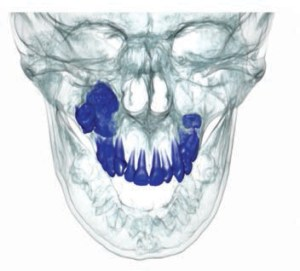 FIGURE 5. This computed tomography reconstruction shows a radiopaque lesion associated with an impacted molar.