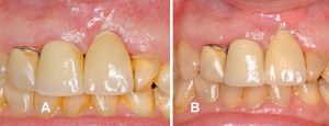FIGURE 2A and FIGURE 2B. After four weeks (A) and 12 months (B) of treatment, the patient from Figure 1 still exhibits gingival recession.