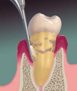 FIGURE 1. The periodontal endoscope fiber/sheath/explorer complex is placed subgingivally into a pocket.