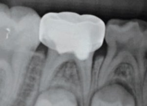 FIGURE 6. This radiograph shows a pulpotomized tooth #T demonstrating pulp canal obliteration.